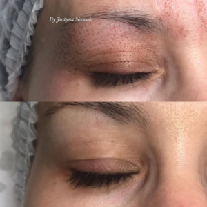 Bilder fra Eger Skin Clinic
